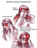 Толгойн өвдөлт, түүнийг эмчлэх